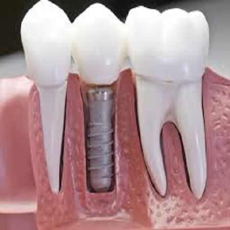 best implant dentist cardiff